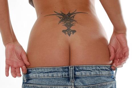 tattoentfernung-mönchengladbach